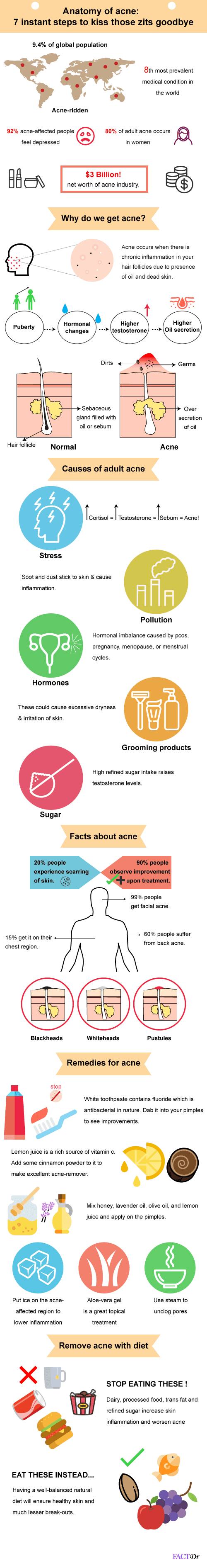Anatomy of acne: 7 instant steps to kiss those zits goodbye