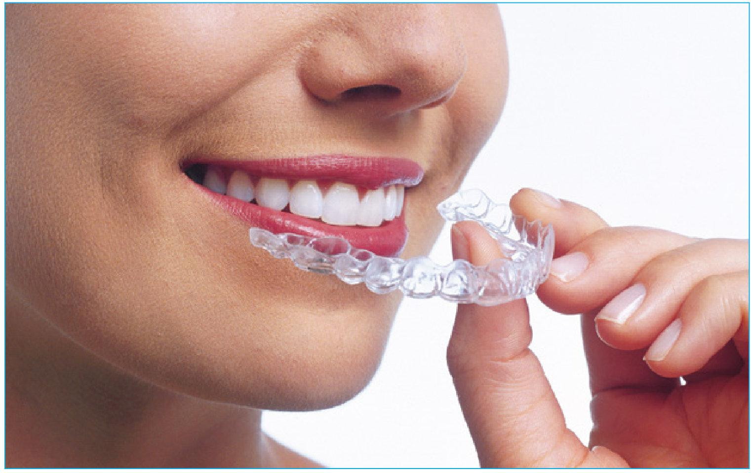 Clear Aligners: The New Way to Get Your Smile Straightened