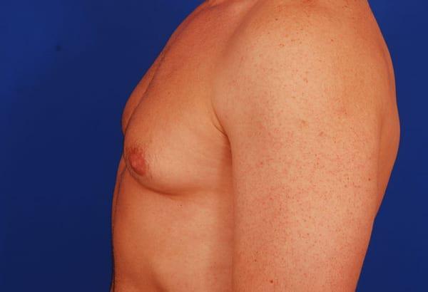 Gynecomastia- Excessive Breasts In Men