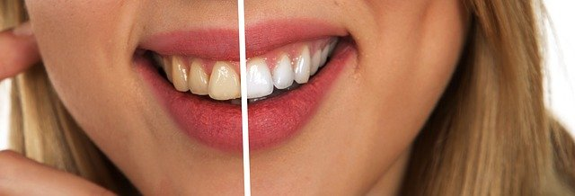 7 Things You Must Know About Cosmetic Dentistry